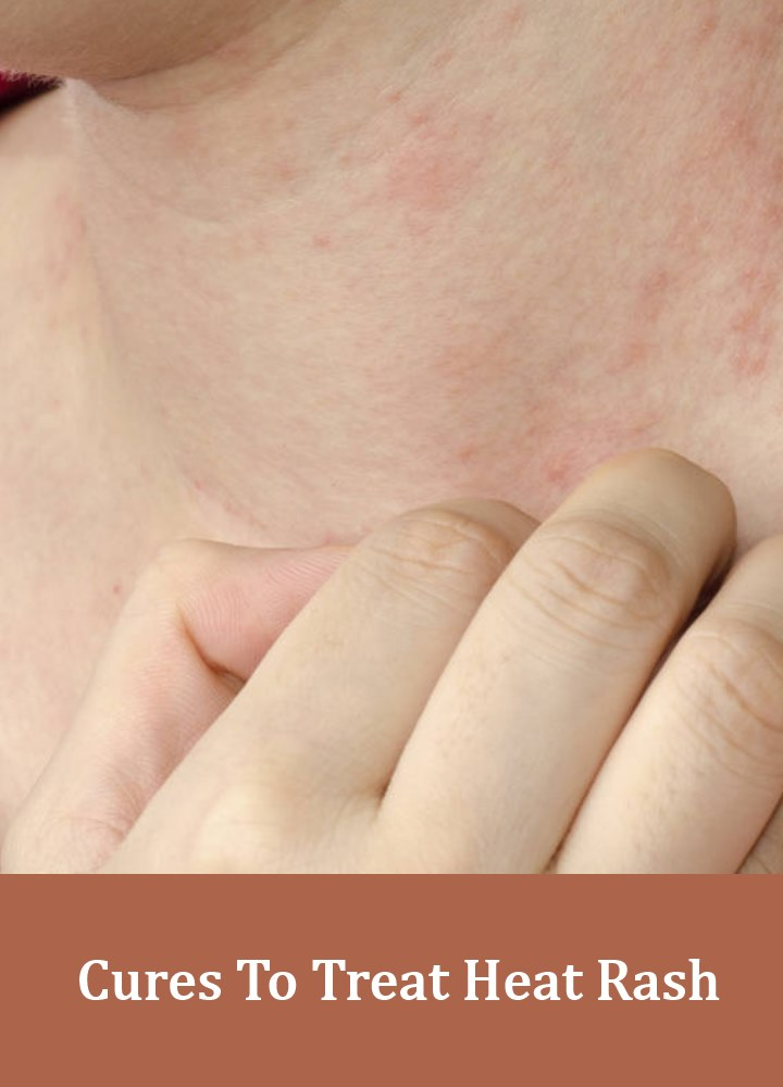 6 Cures To Treat Heat Rash